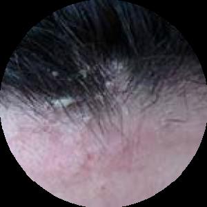dermatitis seborrheica: droogheid, rode huid en/of bloeding