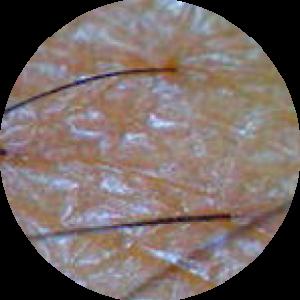 haaruitval door de aanwezigheid van dermatitis of overgevoeligheid