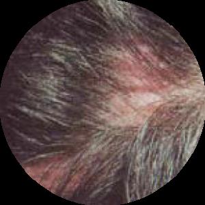 hoofdhuid met rode vlekken, beschadiging of wonden